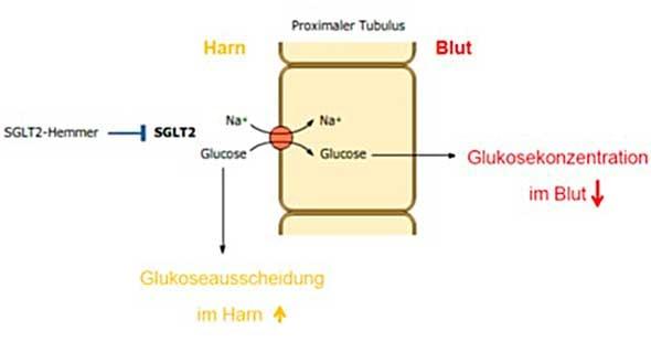 Hemmung der Glukoserückaufnahme vom Harn ins Blut im proximalen Tubulus der Niere durch SGLT-2-Hemmer.